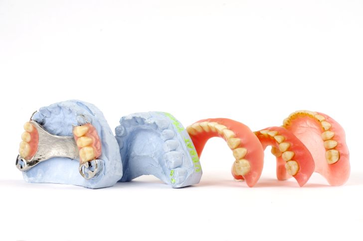 Ways to Apply for Free Government Grants for Dentures