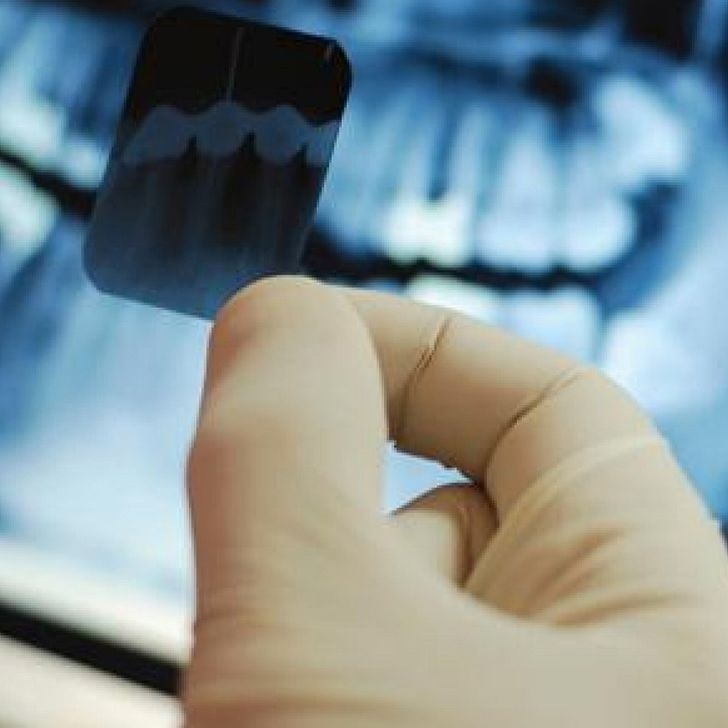 Dental Grants for Individuals